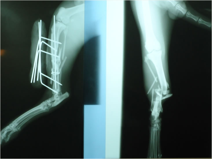 Fracture of tibia
